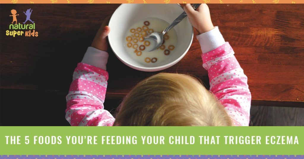 The 5 Foods You Re Feeding Your Child That Trigger Eczema