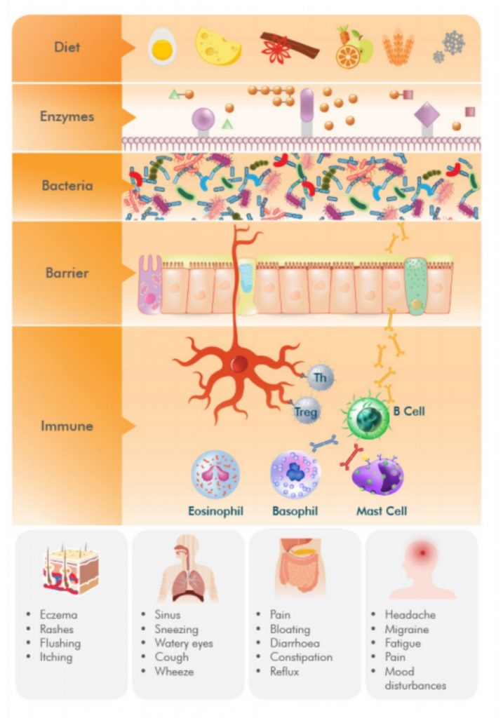 Food Allergies Intolerances Diagram